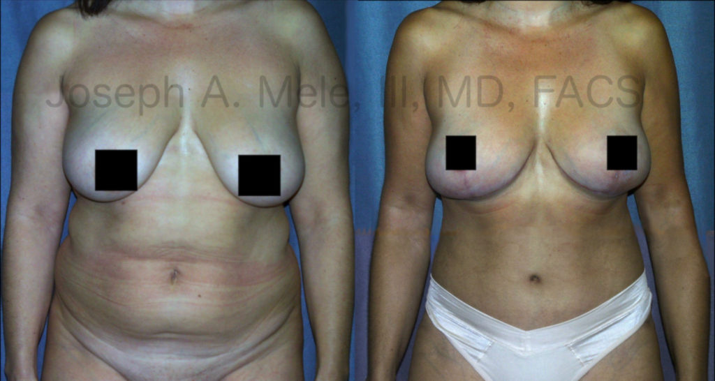 This Mommy Makeover combined a Breast Augmentation Lift with a Tummy Tuck and Liposuction.