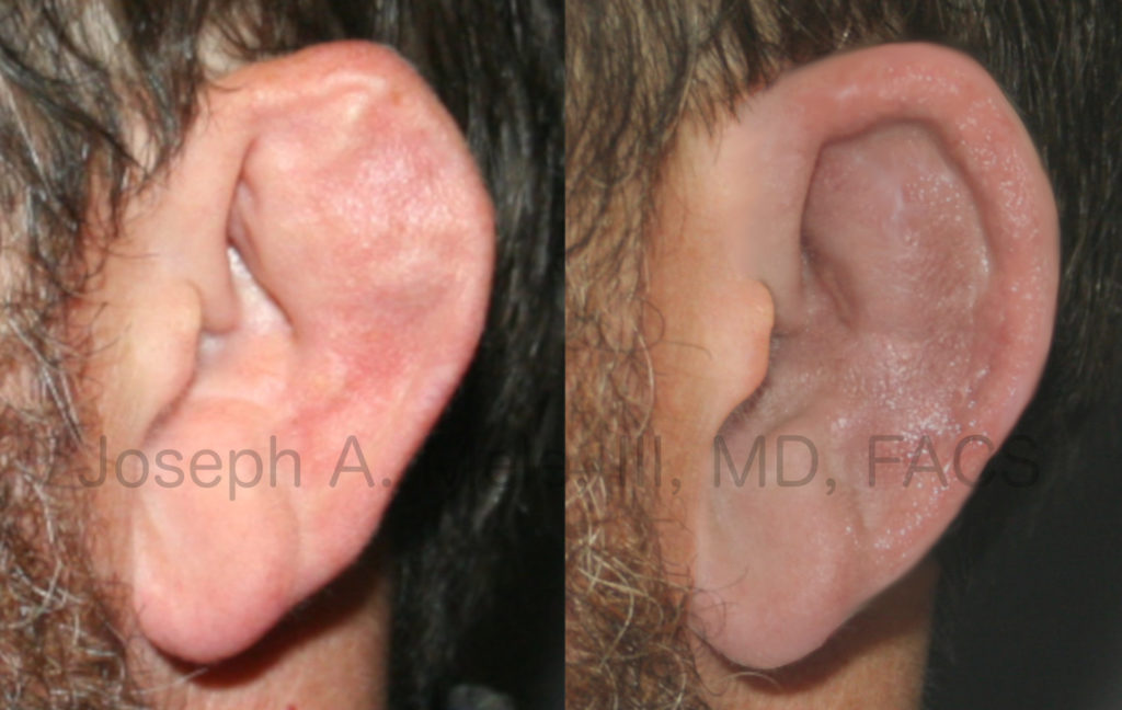 Here, the ear hole, otherwise known as the external auditory meatus, is closed. Cauliflower ear treatment often includes opening an obstructed ear hole, in addition to restoring the normal ear hollow and curves.