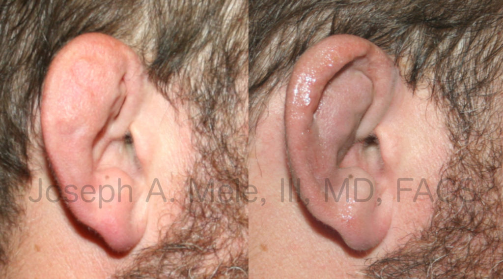 Cauliflower ear is caused by trauma. Like most medical problems, prevention or early intervention are preferable. Late treatment, as shown in the Cauliflower Ear Before and After Pictured above, can help; however, creating an aesthetically pleasing ear after this type of trauma is very challenging.
