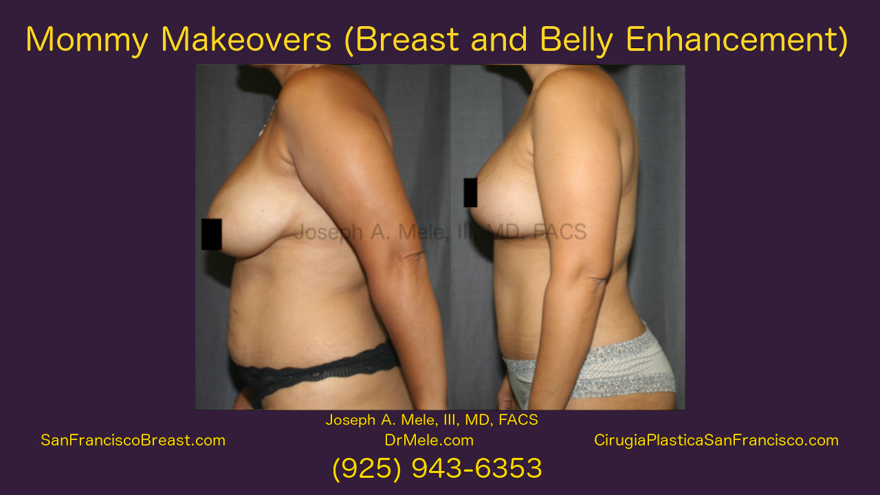 Mommy Makeover Video Presentation with Before and After Pictures