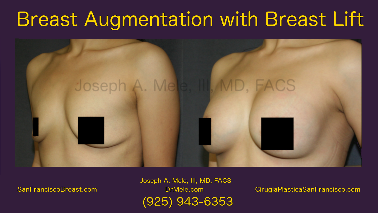 Breast Augmentation with Breast Lift Video with Mastopexy Augmentation Before and After Pictures