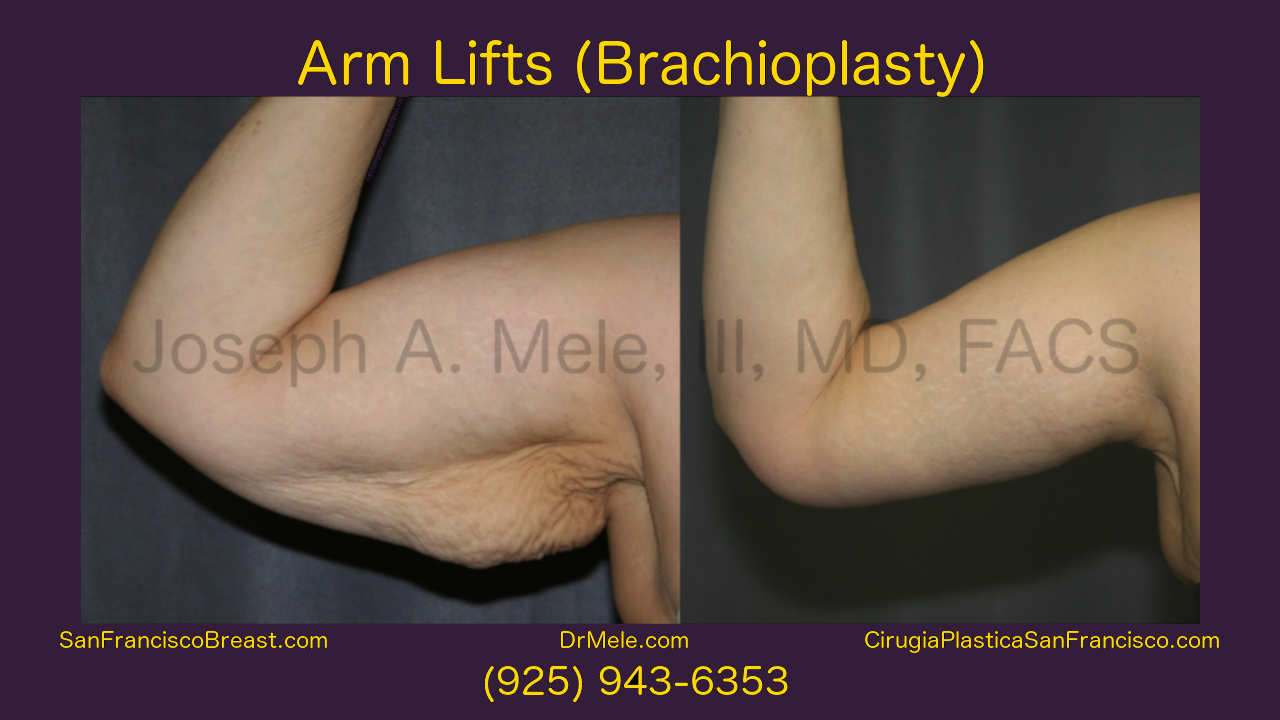 Arm Lift (Brachioplasty) Video with Before and After Photos