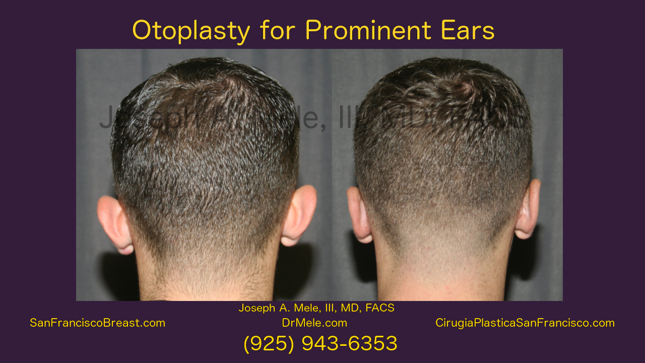 Cosmetic Ear Surgery (Otoplasty) Video with Ear Pinning Before and After Pictures