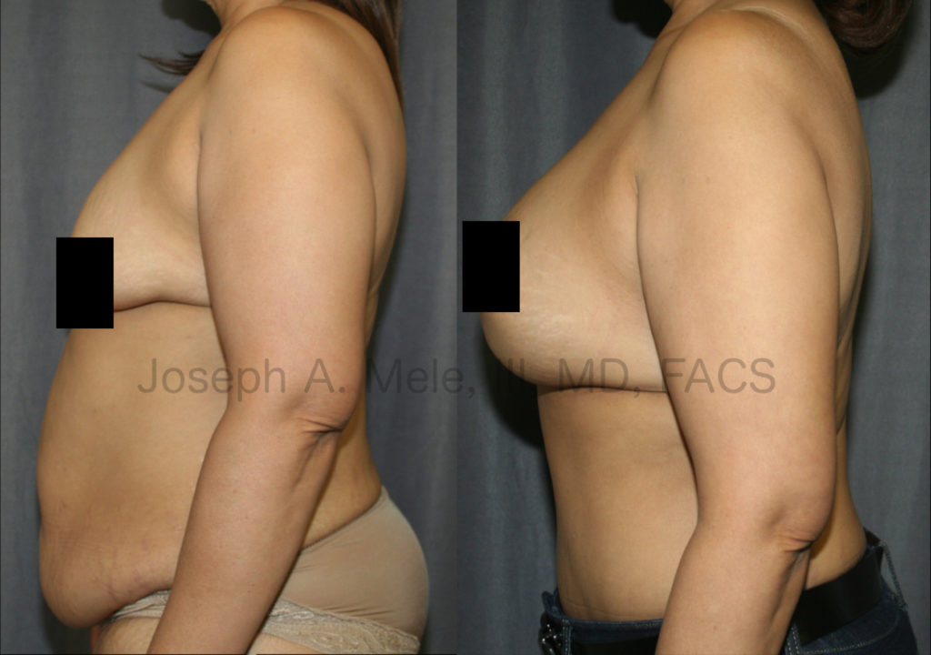 Breast Augmentation with Breast Lift (Mastopexy Augmentation) and Tummy Tuck. Breast Enlargement when the breasts are sagging and the nipples are below the inframammary fold requires a Breast Lift to achieve an aesthetic result. The Tummy Tuck further enhances the breasts' proportion by flattening the belly.
