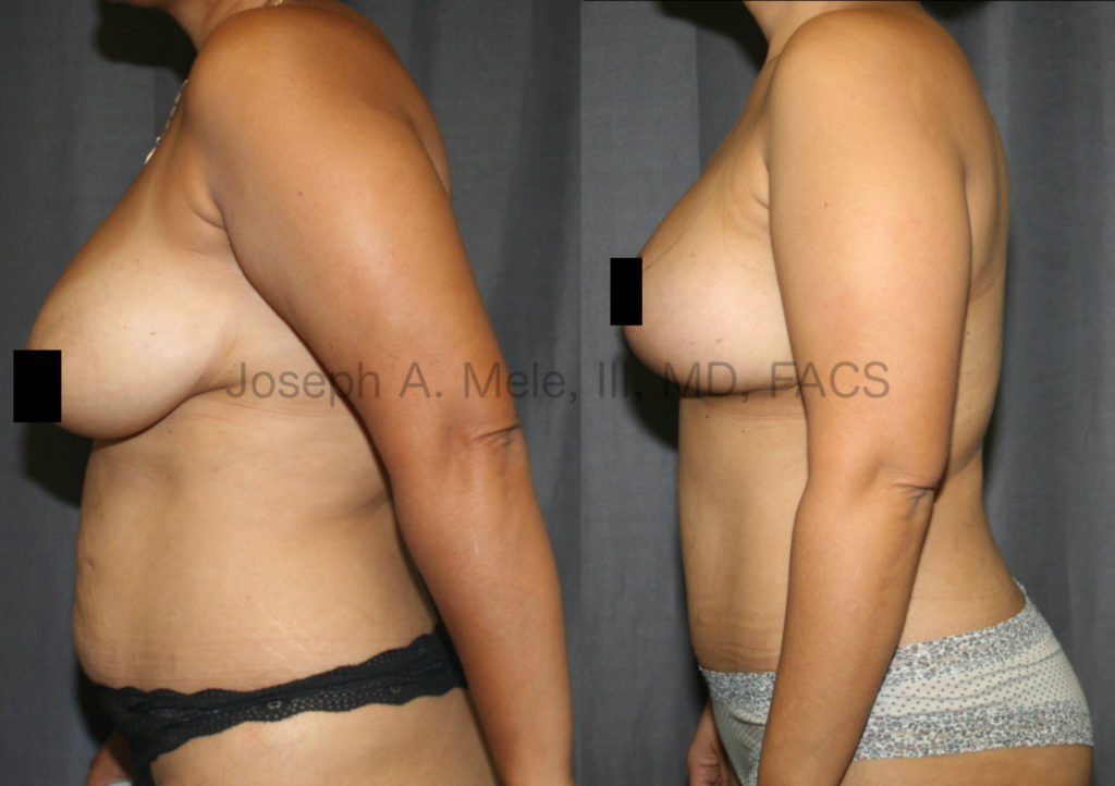 Mommy Makeovers include breast and belly enhancement in one surgery.