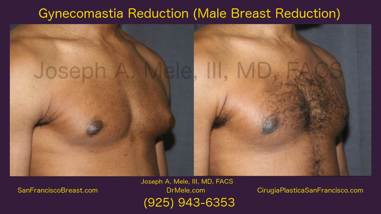 Gynecomastia Reduction Video with Male Breast Reduction Before and After Photos