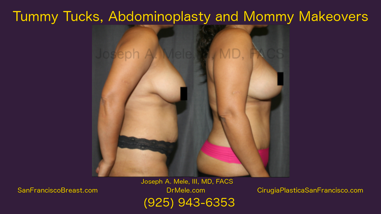 Tummy Tuck (Abdominoplasty) and Mommy Makeover Video with Before and After Pictures