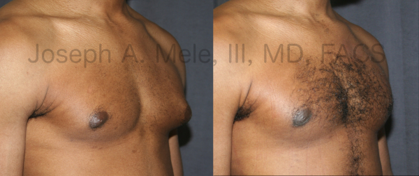 Gynecomastia Reduction for male breast enlargement before and after pictures