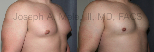 Gynecomastia Reduction for Body Builders before and after photos