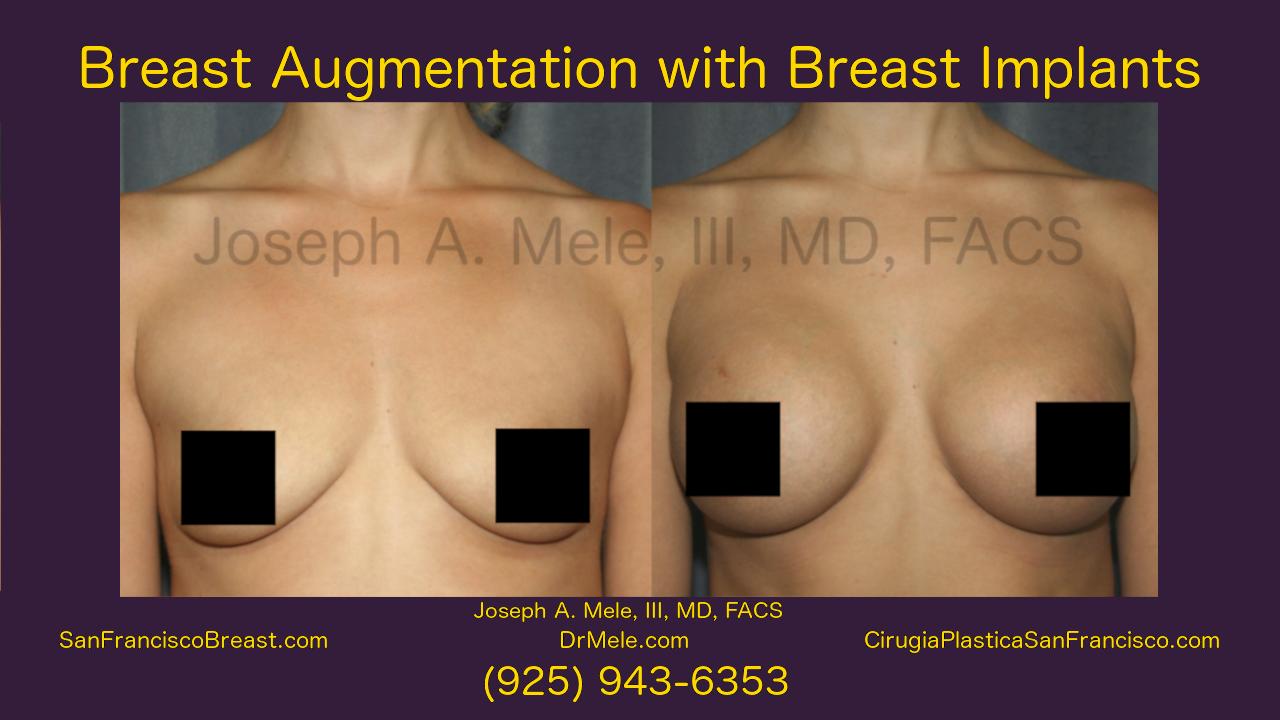 Breast Augmentation Video Presentation