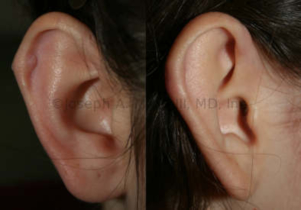 Ear repair after ear piercing gone bad - before and after pictures