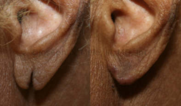 Plastic Surgery for torn earlobes - before and after pictures