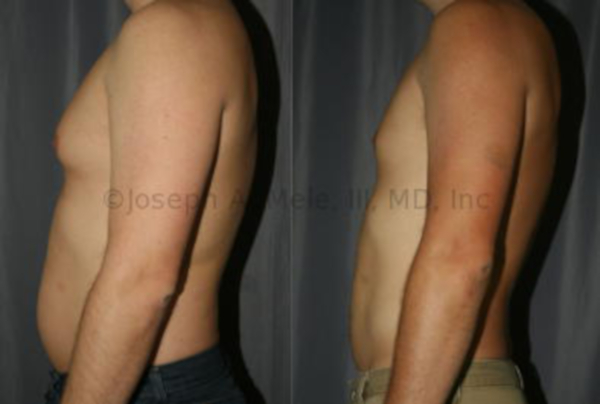 Liposuction of the Chest and Abdomen in a Man