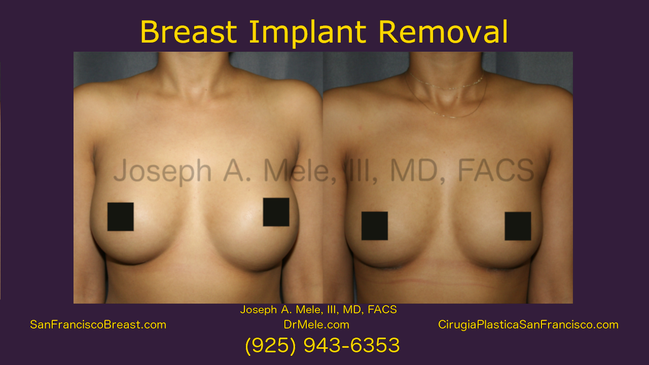 Breast Implant Removal Video with Before and After Pictures