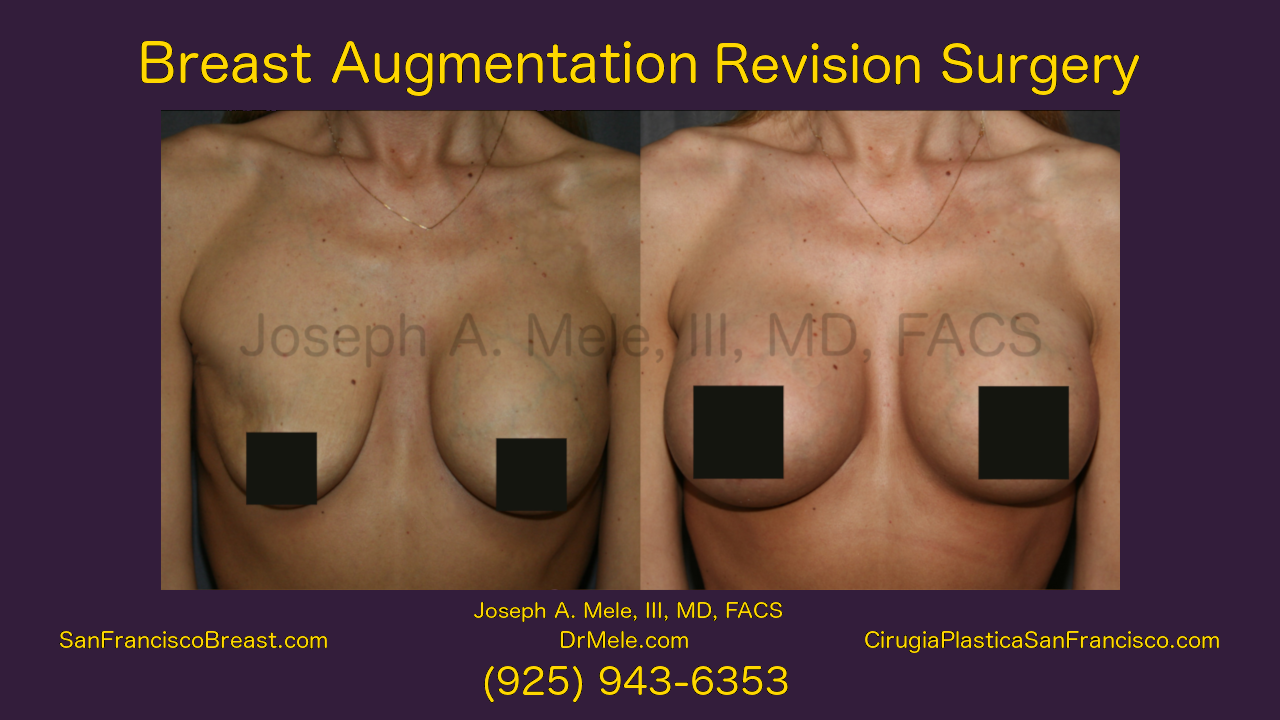 Breast Implant Revision Video with Breast Augmentation Revision Before and After Pictures