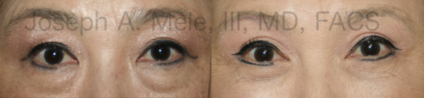 upper and lower eyelid lift before and after pictures (quad blepharoplasty)