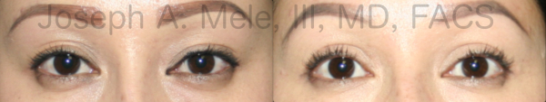Asian double eyelid surgery before and after photos