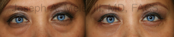 Lower blepharoplasty before and after pictures