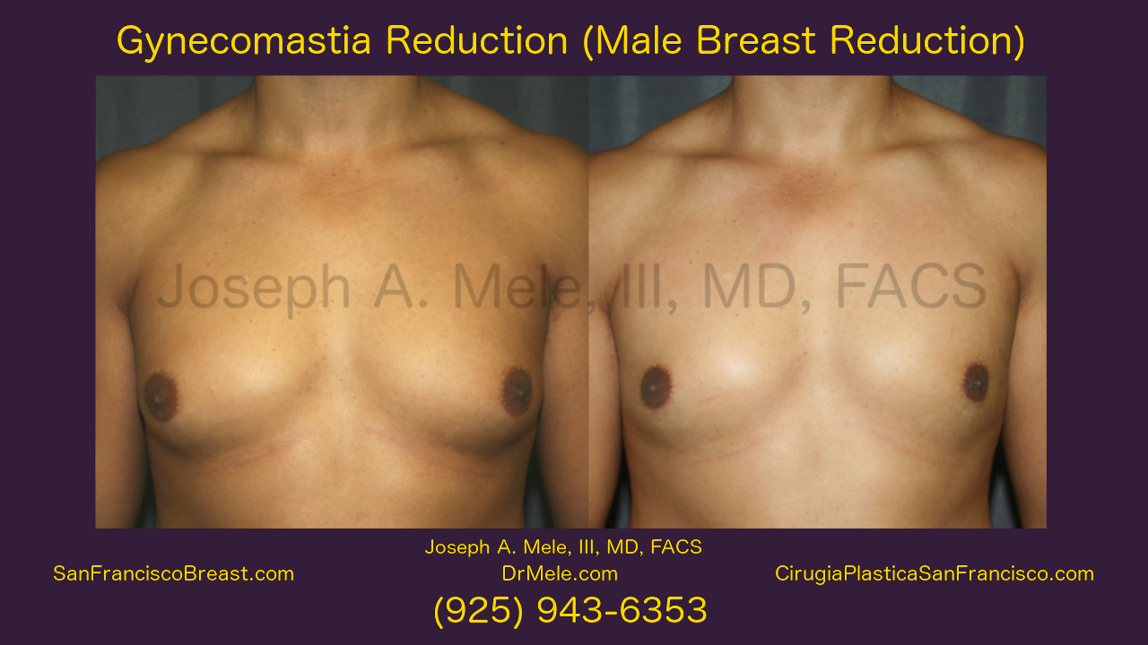 Male Breast Reduction (Gynecomastia Surgery) Video Presentation with Before and After Pictures