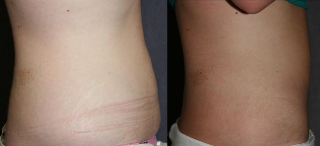 Mini Tummy Tuck Before and After (Mini Abdominoplasty)