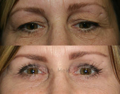 Upper Blepharoplasty removes excess skin and fat from the upper eyelids, providing more rested and alert appearance.