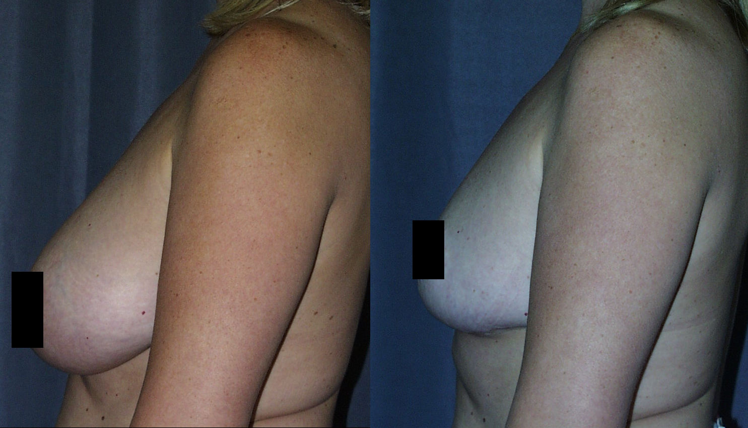 Breast Reduction Before and After Pictures Side View