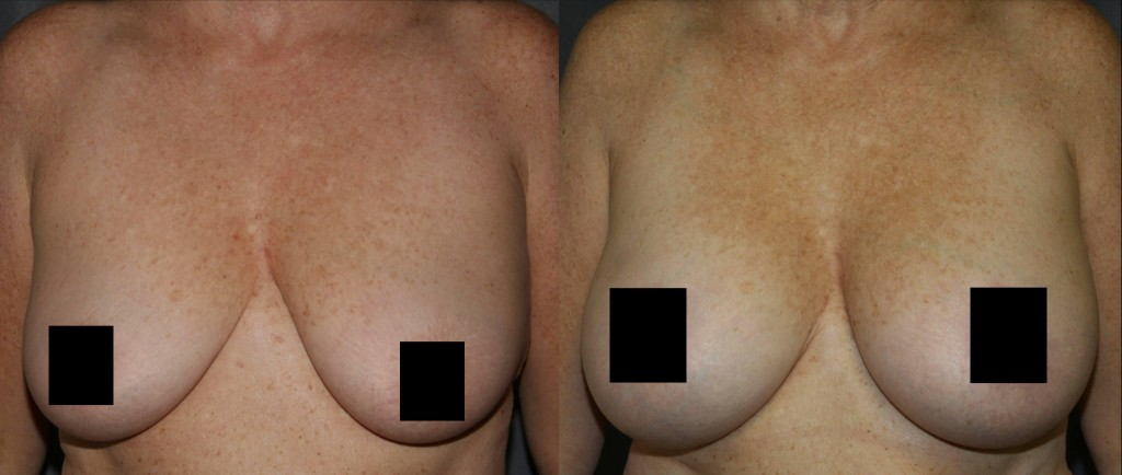 Breast Lift with Breast Augmentation Before and After