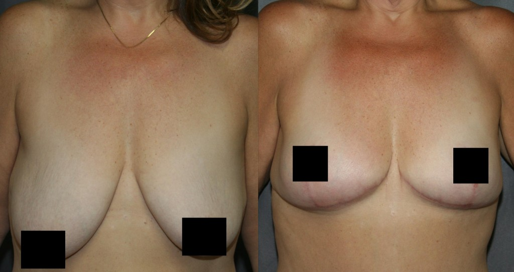 Breast Lift for Smaller Breasts