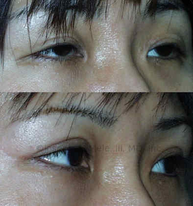 Asian eyelid surgery often includes the formation of a more distinct eyelid crease called the palpebral fold.