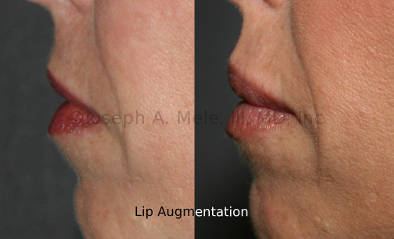 Today Lip Augmentation is dominated by injectables. Fillers like Restylane, Juvederm and Perlane, were performed a few million times last year in the US for Lip Augmentation and the treatment of facial wrinkles last year, second in number only to Botox for all non-surgical cosmetic procedures.