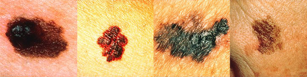 Each melanoma above depicts a typical finding. From left to right they are: A) Asymmetry; B) Borders that are irregular and not smooth; C) Colors that vary from red, white to blue; D) Diameter that is large or increasing in size.