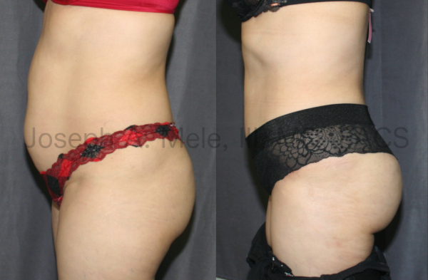 The patient above has very little excess skin and fat; however, her muscles are stretched out of shape. A Tummy Tuck was performed to tighten her abdominal wall, like an internal corset. Also, the available fat she had was used to reshape her buttocks with a Brazilian Butt Lift.