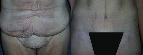 The FUPA (fat upper pubic area) is the excess fullness located above the pubic region and below the excess belly skin. If not addressed at the time of a Tummy Tuck, this excess skin can be a continued source of annoyance and embarrassment.