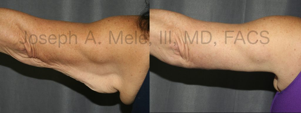 The above Arm Lift before and after pictures demonstrate how careful scar placement enhances the results. In this case, the excess skin was removed using a scar that runs from the inside of the elbow to the back of the armpit. Even with the elbow rotated backward, the scar is still hidden along the lower border of the arm.