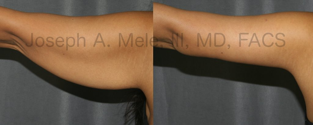 The above Arm Lift Before and After Photos demonstrate what a Brachioplasty can do. Excess skin is removed, leaving the arm tight, firm and with a more muscular contour.