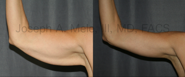 Brachioplasty or Arm Lift Before & After results. Before there is a plethora of excess arm skin. After the upper arm stops waving when the hand does, and a very happy patient.