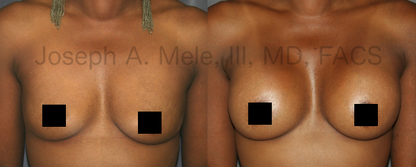 Breast Augmentation before and after pictures - front view African-American woman