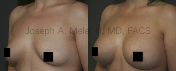 Breast implants come in a large variety of sizes and shapes. The best size for you is subjective; however, a Board Certified Plastic Surgeon can supply you with professional guidance in selecting the Breast Implant that will best provide the result you are looking for.