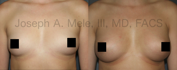 Breast Augmentation Before and After - Front View