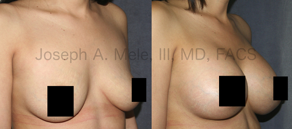 Breast Augmentation provides fullness and support. Not only can a Breast Implant enlarge a small breast, but it can restore shape and volume to a breast that has changed due to pregnancy, weight loss or aging.