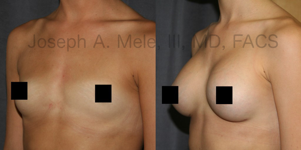 Research confirms what plastic surgeons have known for years. Breast Augmentation does more for a woman than just enlarging her breasts