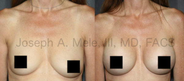 Breast Augmentation before and after pictures: Breast Implants areused to enlarge and improve breast asymmetry.