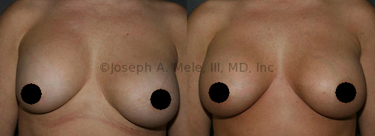 Capsular Contracture release can improve the feel and location of the Breast Implant.