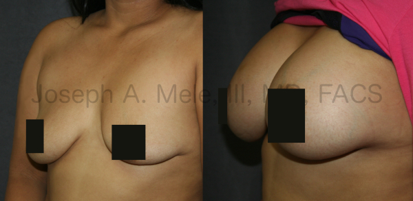 Breast Implant Replacement after breast implant exposure Before and After Pictures - Front View