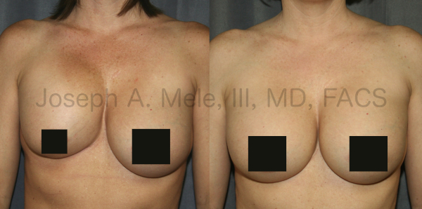 Breast Implant Revision for Capsular Contracture Before and After Pictures - Front View