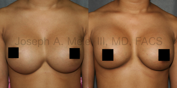 Breast Implant Revision for Symastia or Uniboob Before and After Pictures - Front View