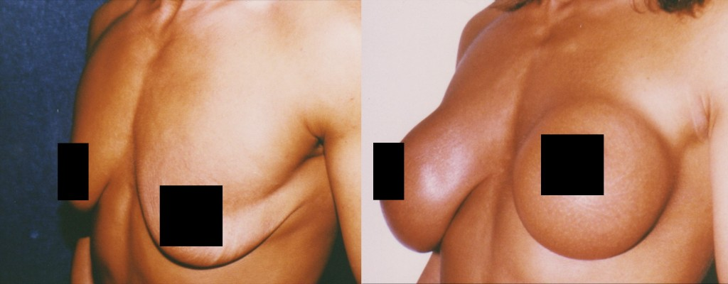 Submuscular Breast Augmentation with Round Breast Implant (Thin Coverage) Before and After Pictures
