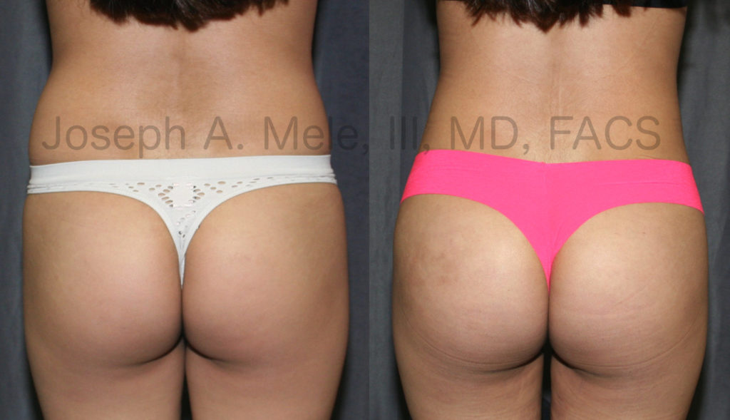 In the above BLL patient, fat was removed from the lower back, flanks and thighs and was injected into the buttocks.
