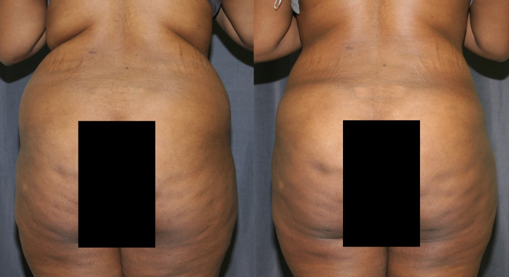 Liposculpture was used to contour and remove excess fat above and below the buttocks. The fat was then grafted into the buttocks to provide additional fullness.