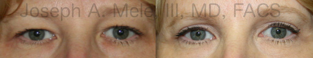 Upper blepharoplasty removes excess upper eyelid skin - before and after pictures